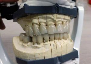 implanty-duodent-łódź-1