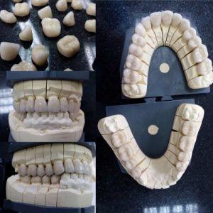 implanty-duodent-łódź-10