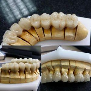 implanty-duodent-łódź-11
