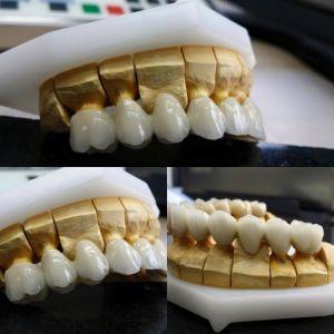 implanty-duodent-łódź-13