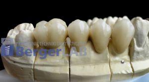 implanty-duodent-łódź-15