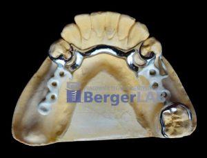 implanty-duodent-łódź-19