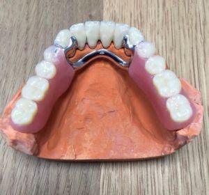 implanty-duodent-łódź-4
