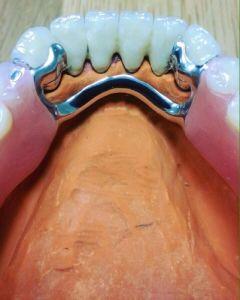 implanty-duodent-łódź-5