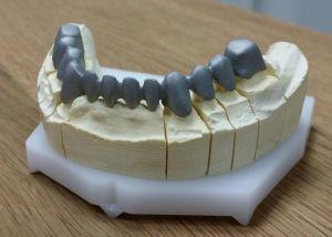 implanty-duodent-łódź-6