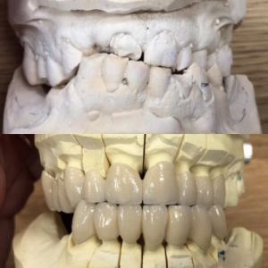 implanty-duodent-łódź-7