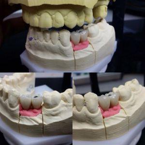 implanty-duodent-łódź-8