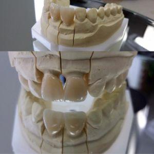 implanty-duodent-łódź-9