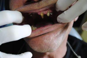 dentysta-łódź-1