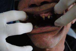 dentysta-łódź-2