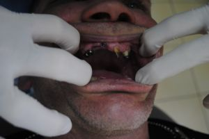 dentysta-łódź-4
