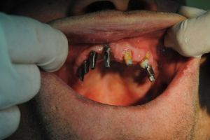 dentysta-łódź-5