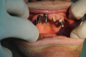 dentysta-łódź-6