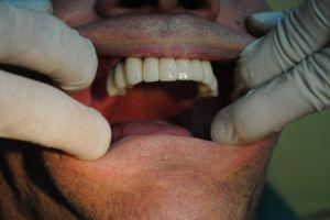 dentysta-łódź-7
