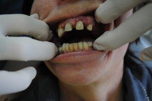 stomatolog-łódź-1