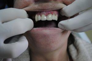 stomatolog-łódź-5