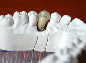 implanty-łódź-10