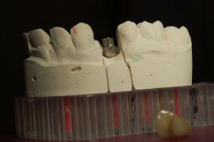 implanty-łódź-11