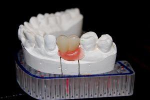implanty-łódź-14