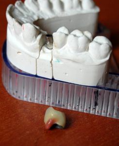 implanty-łódź-16