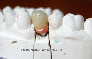 implanty-łódź-2