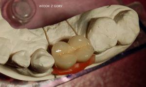 implanty-łódź-20