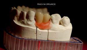 implanty-łódź-21
