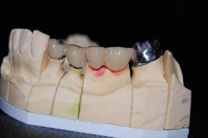 implanty-łódź-9